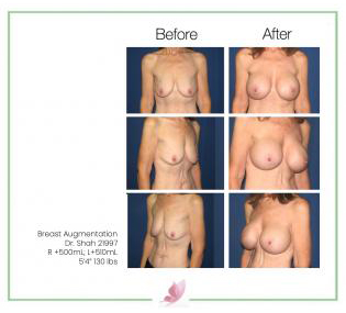 dr-shah breast-augmentation 55