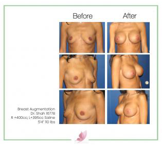 dr-shah breast-augmentation 56