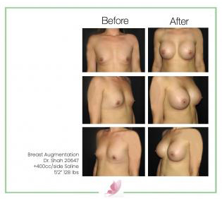 dr-shah breast-augmentation 57