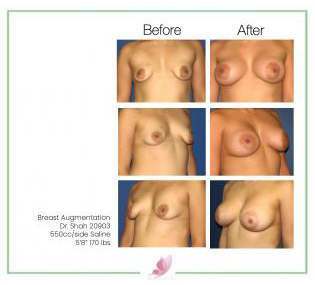 dr-shah breast-augmentation 58