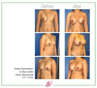 dr-shah breast-augmentation 59