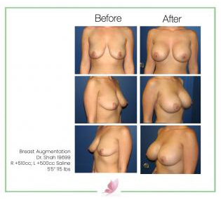 dr-shah breast-augmentation 6