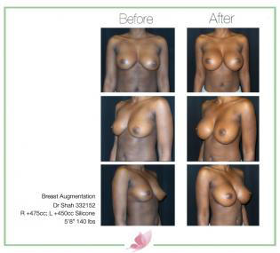 dr-shah breast-augmentation 60