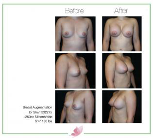 dr-shah breast-augmentation 61