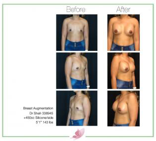 dr-shah breast-augmentation 62