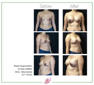 dr-shah breast-augmentation 63