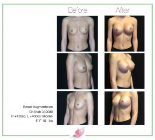dr-shah breast-augmentation 64