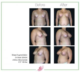 dr-shah breast-augmentation 65