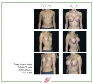 dr-shah breast-augmentation 66