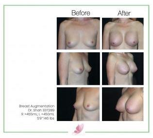 dr-shah breast-augmentation 67
