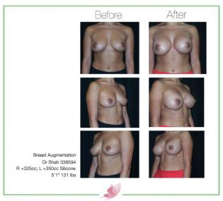 dr-shah breast-augmentation 68