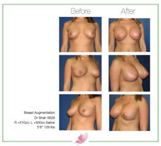 dr-shah breast-augmentation 69
