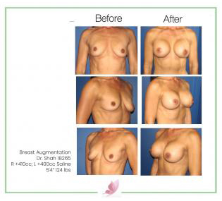 dr-shah breast-augmentation 7