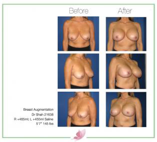 dr-shah breast-augmentation 70