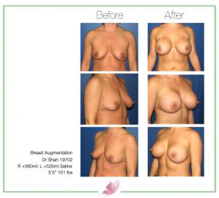 dr-shah breast-augmentation 71