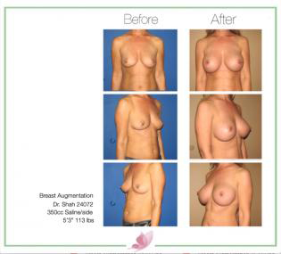 dr-shah breast-augmentation 72