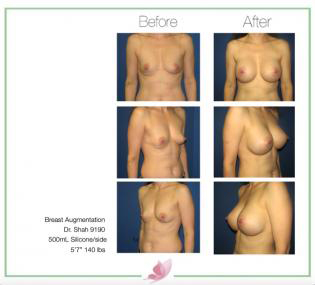dr-shah breast-augmentation 73
