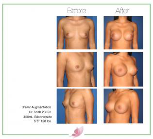 dr-shah breast-augmentation 74
