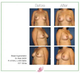 dr-shah breast-augmentation 75