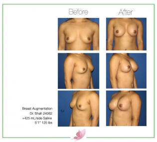 dr-shah breast-augmentation 76