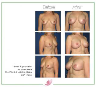 dr-shah breast-augmentation 77