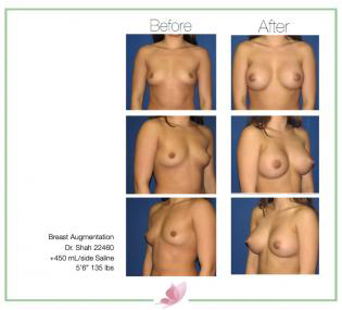 dr-shah breast-augmentation 78