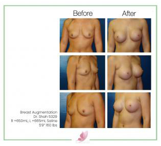 dr-shah breast-augmentation 79