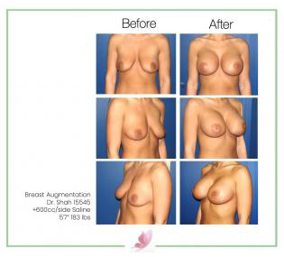dr-shah breast-augmentation 8