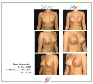 dr-shah breast-augmentation 82
