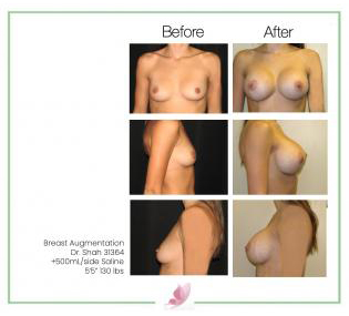dr-shah breast-augmentation 83