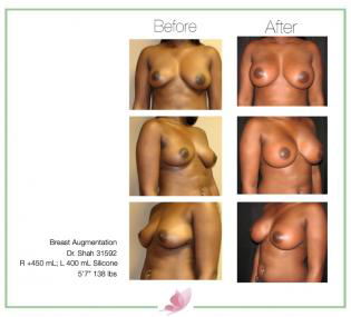 dr-shah breast-augmentation 84