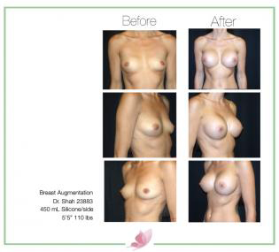 dr-shah breast-augmentation 85