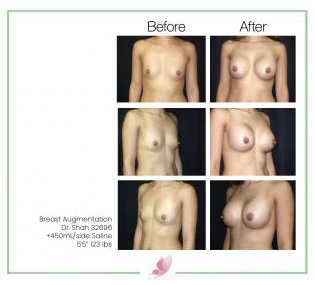 dr-shah breast-augmentation 86