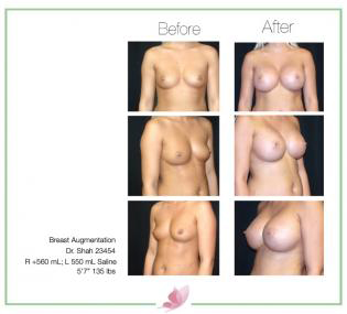dr-shah breast-augmentation 87