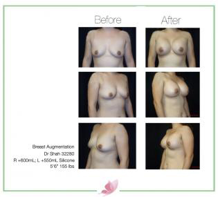 dr-shah breast-augmentation 88