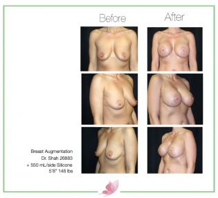 dr-shah breast-augmentation 89