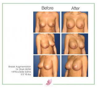 dr-shah breast-augmentation 9