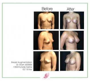dr-shah breast-augmentation 90