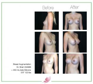 dr-shah breast-augmentation 91