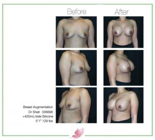 dr-shah breast-augmentation 92