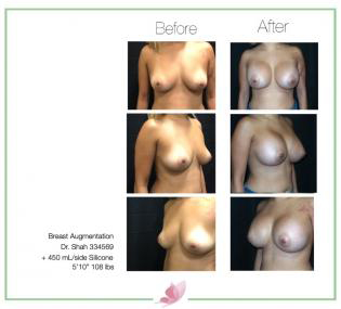 dr-shah breast-augmentation 93