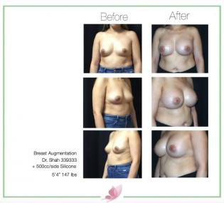 dr-shah breast-augmentation 96