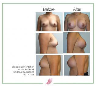 dr-shah breast-augmentation 97