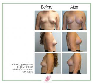 dr-shah breast-augmentation 98