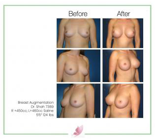 dr-shah breast-augmentation 99