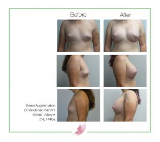 dr-vande-ven breast-augmentation 01