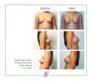 dr-vande-ven breast-augmentation 02
