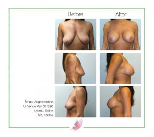 dr-vande-ven breast-augmentation 03