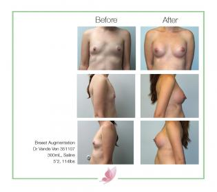 dr-vande-ven breast-augmentation 04