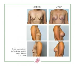 dr-vande-ven breast-augmentation 05